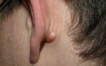 Шишка за ухом: что это и как лечить