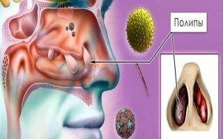 Эффективное лечение полипозного риносинусита